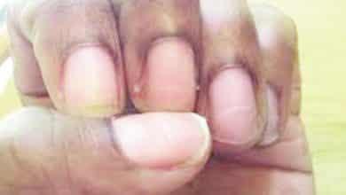 ongles humains